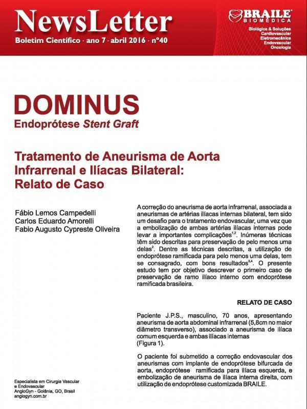 Dominus® Endoprótese Stent-Graft