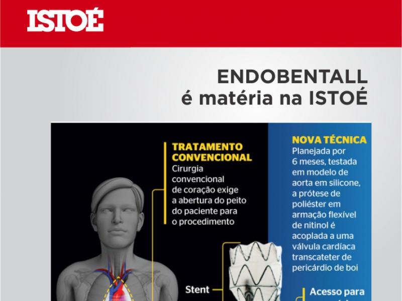 Endobentall na ISTOÉ