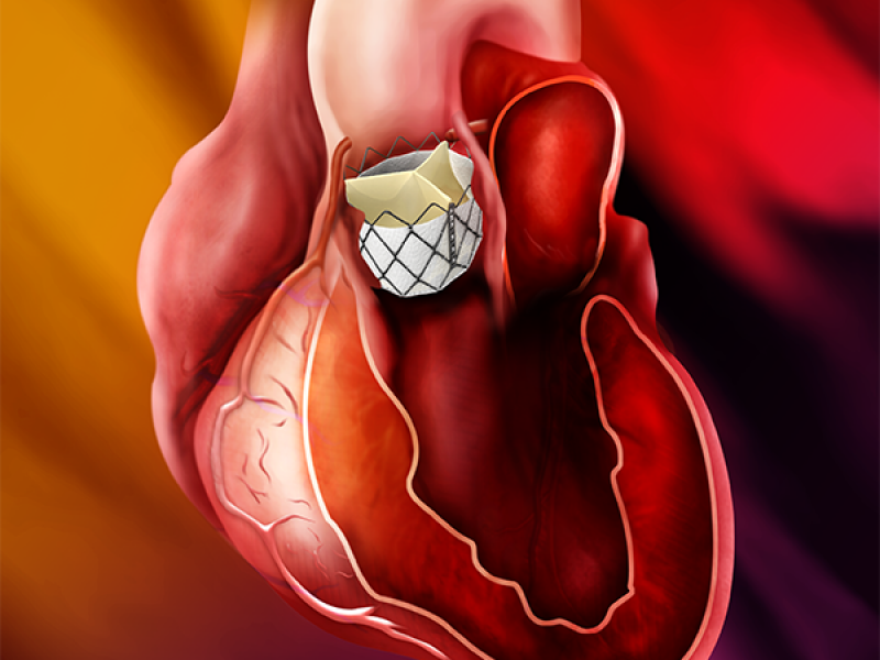 Inovação em válvulas cardíacas leva esperança para pacientes idosos