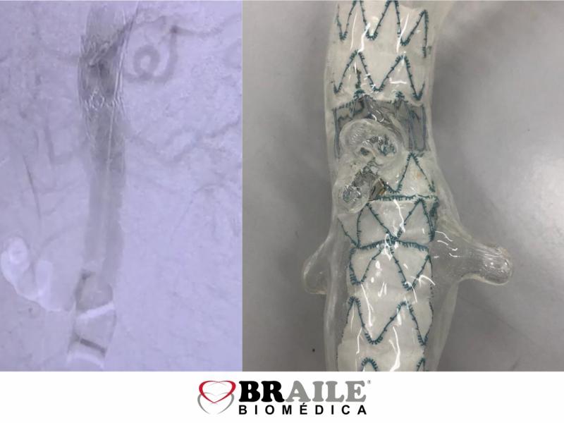 1º Procedimento de Endoprótese Ramificada na Itália