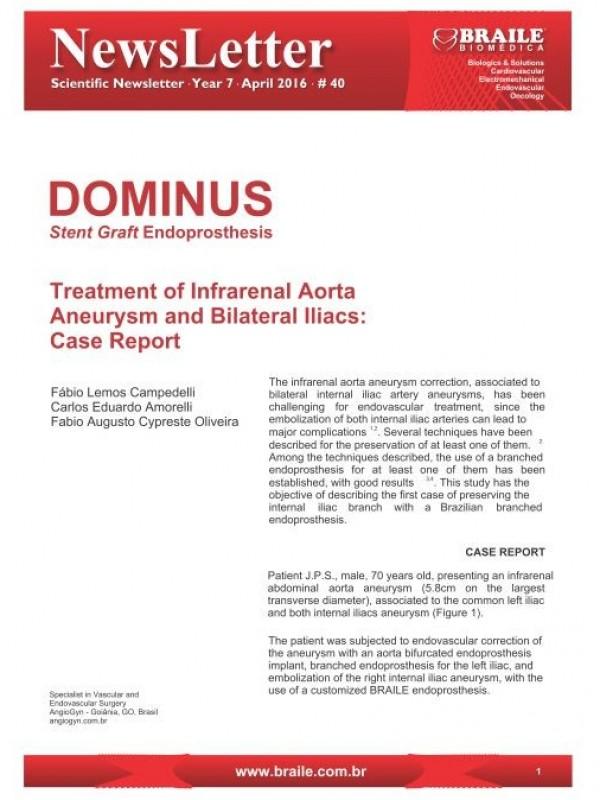 Dominus®  Stent Graft Endoprosthesis